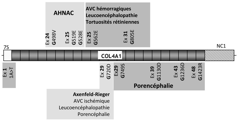 Angiopathie héréditaire avec néphropathie, anévrismes et crampes ...